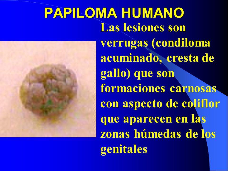 PAPILOMA HUMANO Las lesiones son verrugas (condiloma acuminado, cresta de gallo) que son formaciones carnosas con aspecto de coliflor que aparecen en