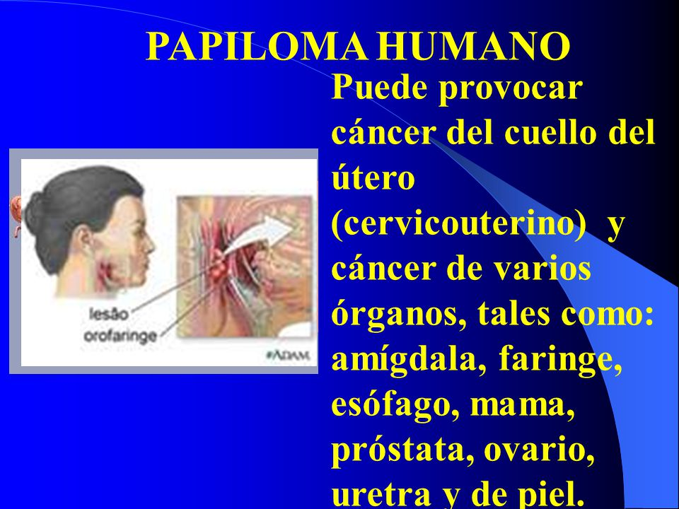 PAPILOMA HUMANO Puede provocar cáncer del cuello del útero (cervicouterino) y cáncer de varios órganos, tales como: amígdala, faringe, esófago, mama,