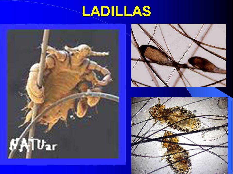 SIFILIS Segunda etapa Puede presentarse medio año después y dura de tres a seis meses, provocando ronchas rosáceas indoloras llamadas clavos sifilíticos en las palmas de las manos y plantas de los pies.