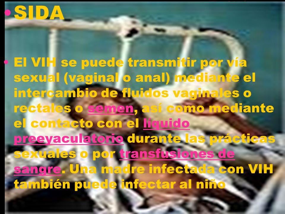 SIDA El VIH se puede transmitir por vía sexual (vaginal o anal) mediante el intercambio de fluidos vaginales o rectales o semen, así como mediante el