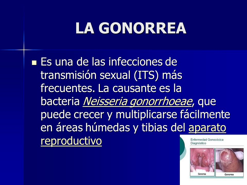 LA GONORREA Es una de las infecciones de transmisión sexual (ITS) más frecuentes.
