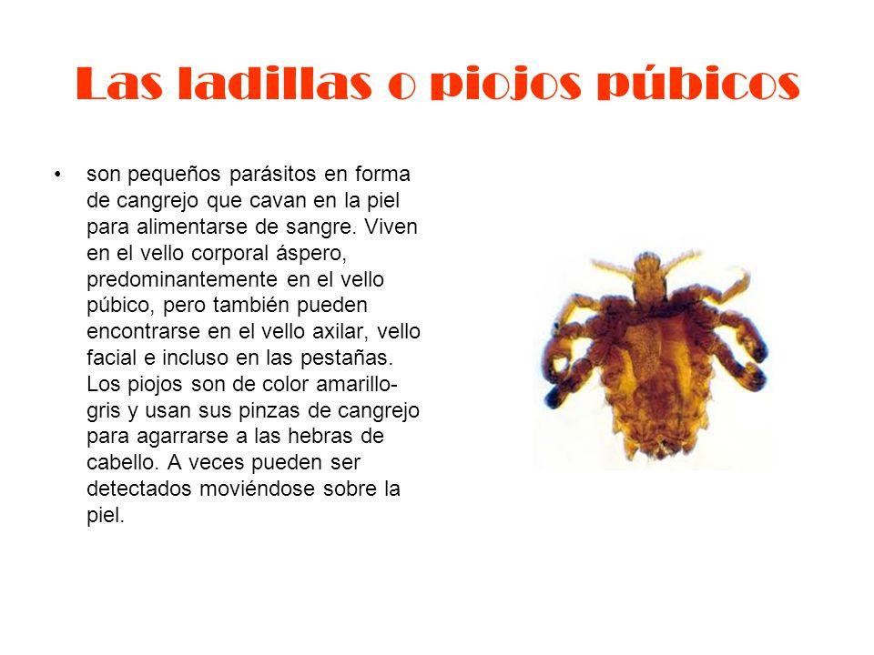 Las ladillas o piojos púbicos son pequeños parásitos en forma de cangrejo que cavan en la piel para alimentarse de sangre.