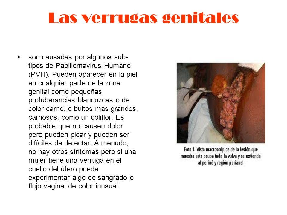 Las verrugas genitales son causadas por algunos sub- tipos de Papillomavirus Humano (PVH).