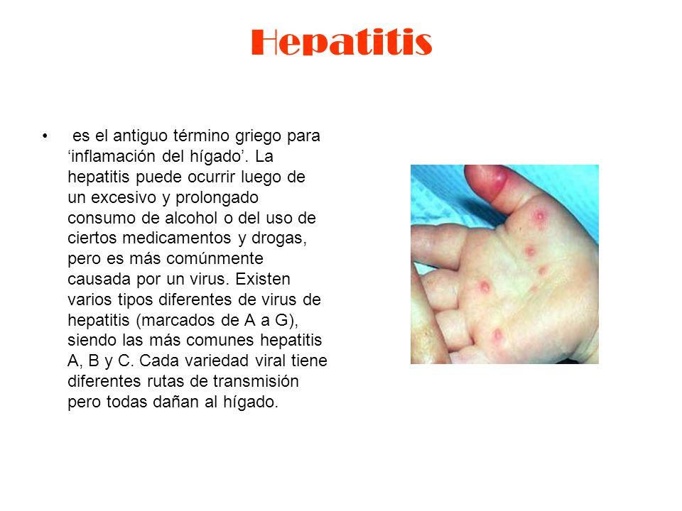 Hepatitis es el antiguo término griego para 'inflamación del hígado'.