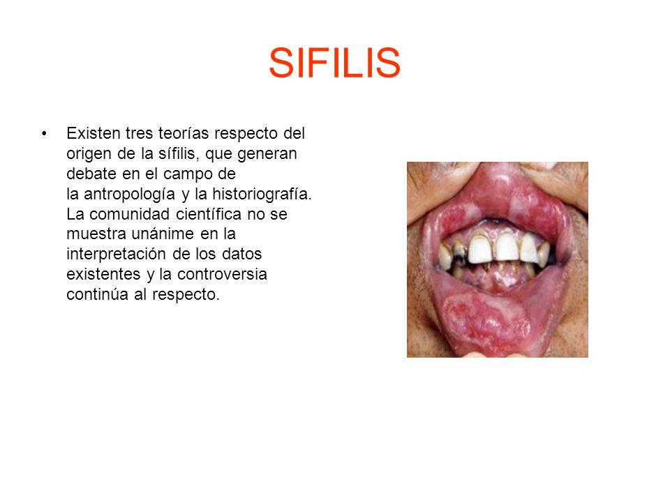 SIFILIS Existen tres teorías respecto del origen de la sífilis, que generan debate en el campo de la antropología y la historiografía.