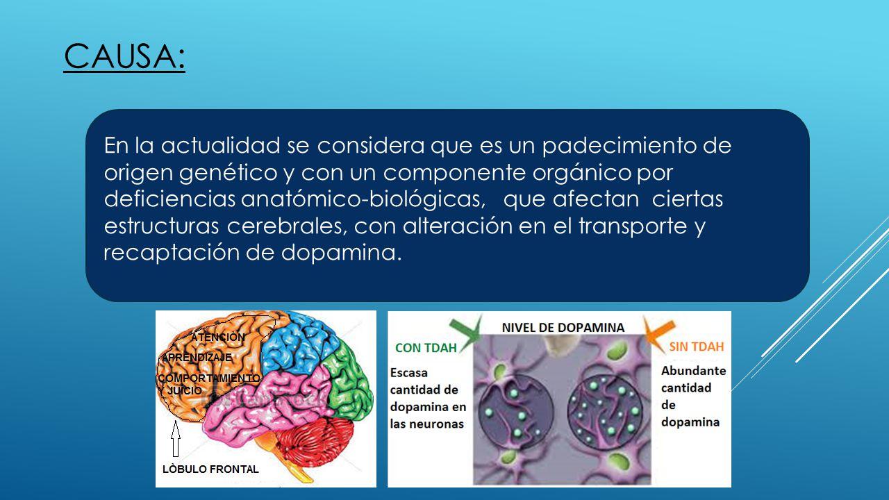 CAUSA: En la actualidad se considera que es un padecimiento de origen genético y con un componente orgánico por deficiencias anatómico-biológicas, que afectan ciertas estructuras cerebrales, con alteración en el transporte y recaptación de dopamina.