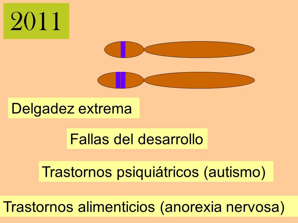2011 Delgadez extrema Trastornos psiquiátricos (autismo) Fallas del desarrollo Trastornos alimenticios (anorexia nervosa)