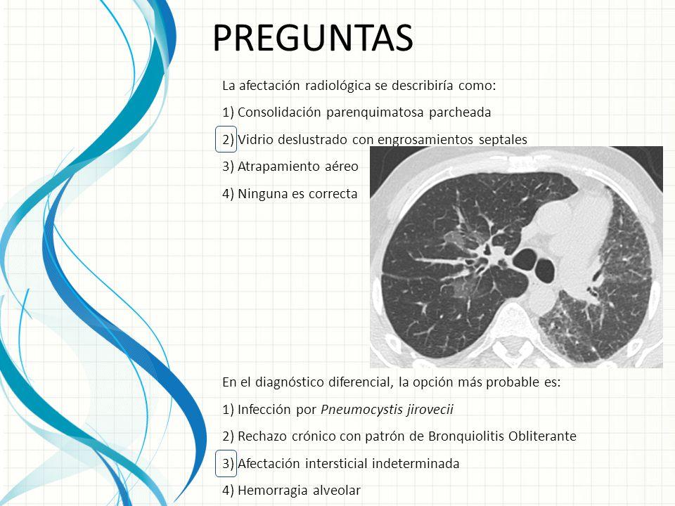 PREGUNTAS La afectación radiológica se describiría como: 1) Consolidación parenquimatosa parcheada 2) Vidrio deslustrado con engrosamientos septales 3) Atrapamiento aéreo 4) Ninguna es correcta En el diagnóstico diferencial, la opción más probable es: 1) Infección por Pneumocystis jirovecii 2) Rechazo crónico con patrón de Bronquiolitis Obliterante 3) Afectación intersticial indeterminada 4) Hemorragia alveolar