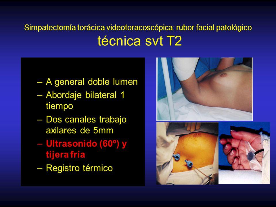 Simpatectomía torácica videotoracoscópica: rubor facial patológico técnica svt T2 –A general doble lumen –Abordaje bilateral 1 tiempo –Dos canales trabajo axilares de 5mm –Ultrasonido (60º) y tijera fría –Registro térmico