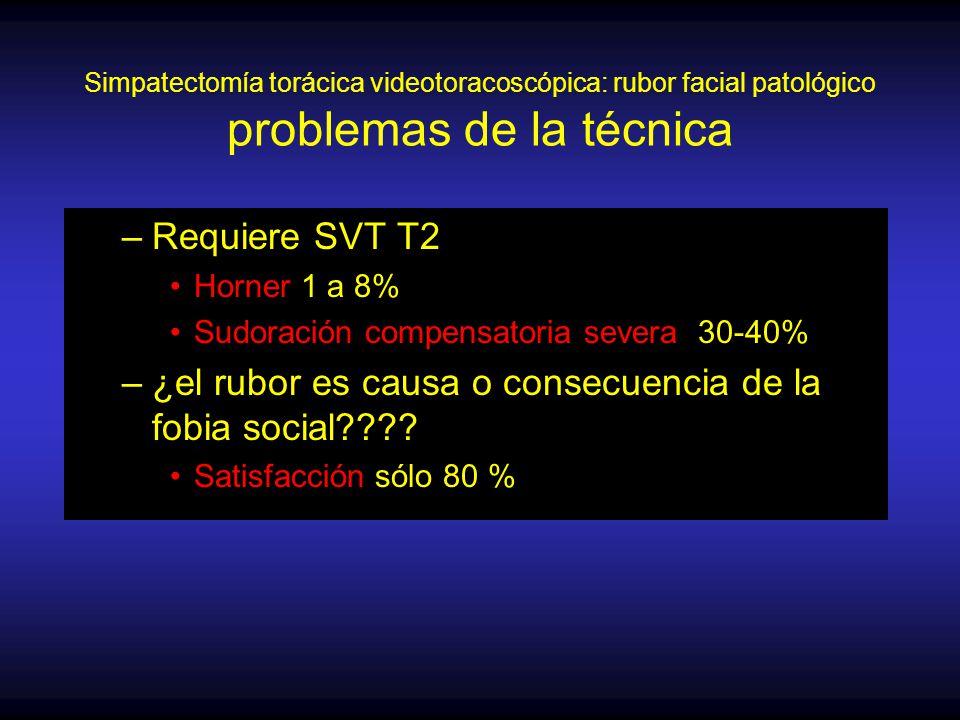 Simpatectomía torácica videotoracoscópica: rubor facial patológico problemas de la técnica –Requiere SVT T2 Horner 1 a 8% Sudoración compensatoria severa 30-40% –¿el rubor es causa o consecuencia de la fobia social .