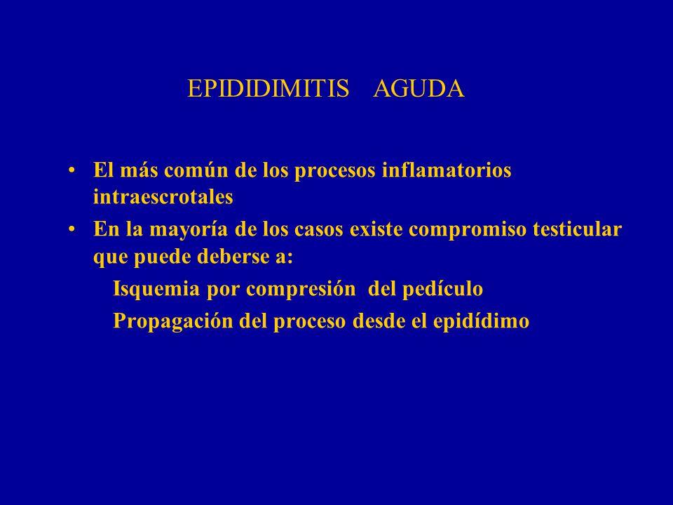 EPIDIDIMITIS AGUDA El más común de los procesos inflamatorios intraescrotales En la mayoría de los casos existe compromiso testicular que puede debers