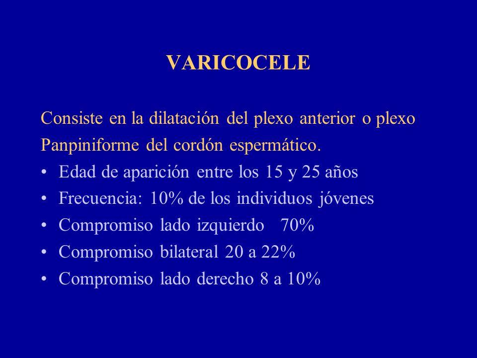 VARICOCELE Consiste en la dilatación del plexo anterior o plexo Panpiniforme del cordón espermático. Edad de aparición entre los 15 y 25 años Frecuenc