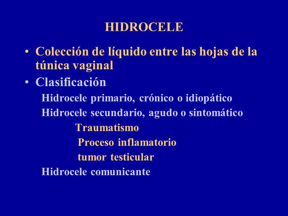 HIDROCELE Colección de líquido entre las hojas de la túnica vaginal Clasificación Hidrocele primario, crónico o idiopático Hidrocele secundario, agudo
