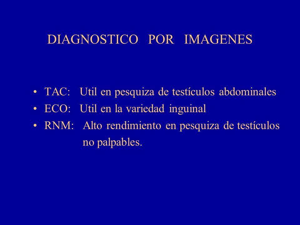 DIAGNOSTICO POR IMAGENES TAC: Util en pesquiza de testículos abdominales ECO: Util en la variedad inguinal RNM: Alto rendimiento en pesquiza de testíc