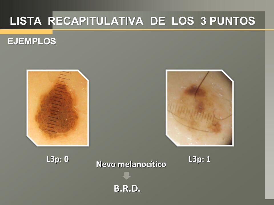LISTA RECAPITULATIVA DE LOS 3 PUNTOS EJEMPLOS Nevo melanocítico L3p: 1 L3p: 0 B.R.D.