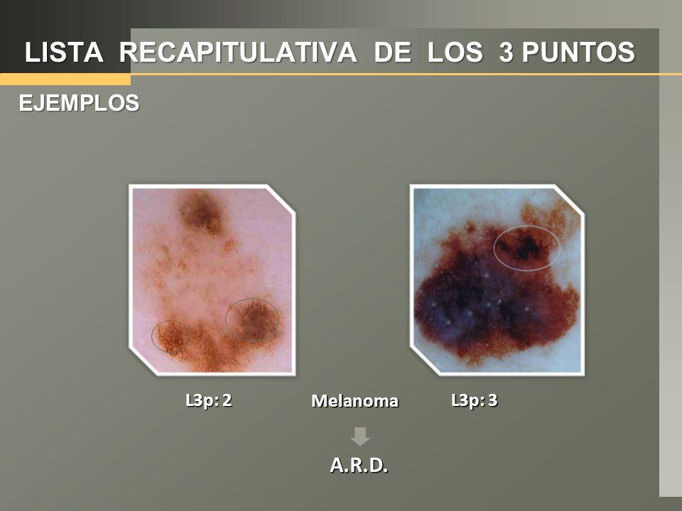 LISTA RECAPITULATIVA DE LOS 3 PUNTOS EJEMPLOS Melanoma L3p: 3 L3p: 2 A.R.D.