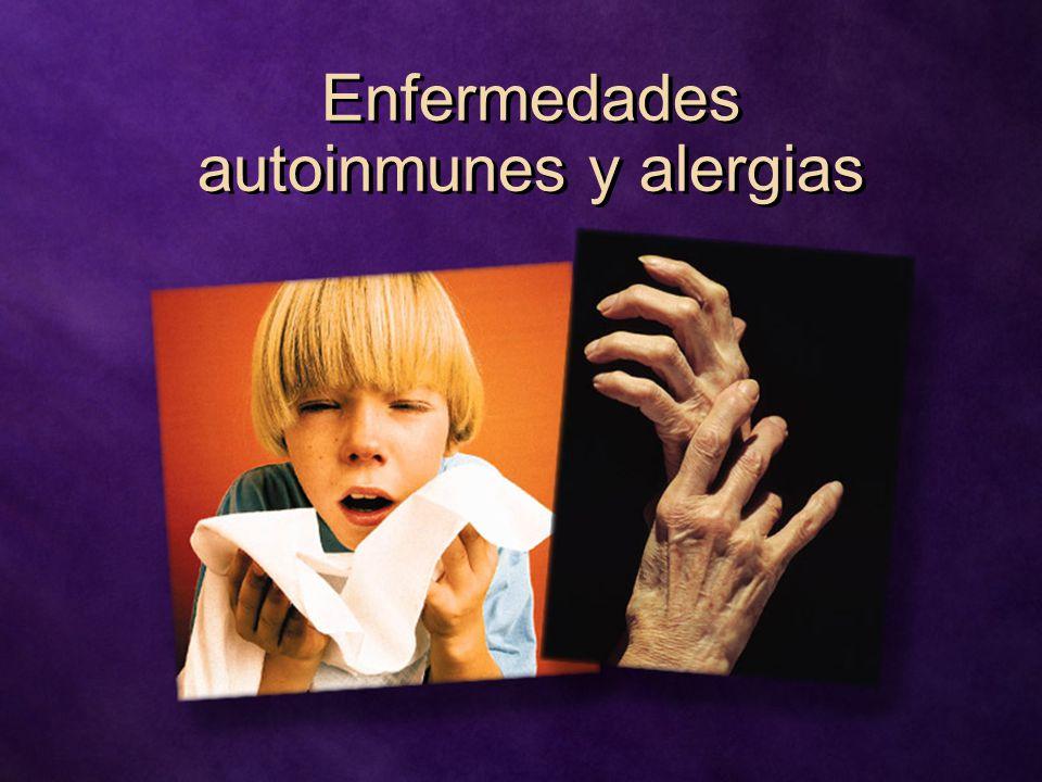 Enfermedades autoinmunes y alergias