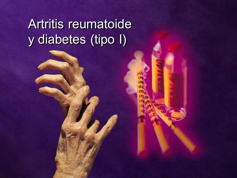 Artritis reumatoide y diabetes (tipo I)