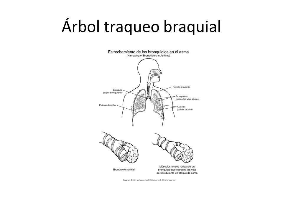 Árbol traqueo braquial