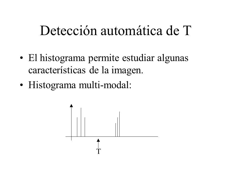 Detección automática de T El histograma permite estudiar algunas características de la imagen.