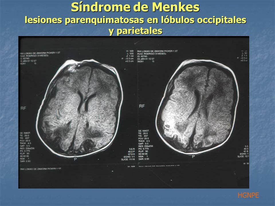 Síndrome de Menkes lesiones parenquimatosas en lóbulos occipitales y parietales HGNPE