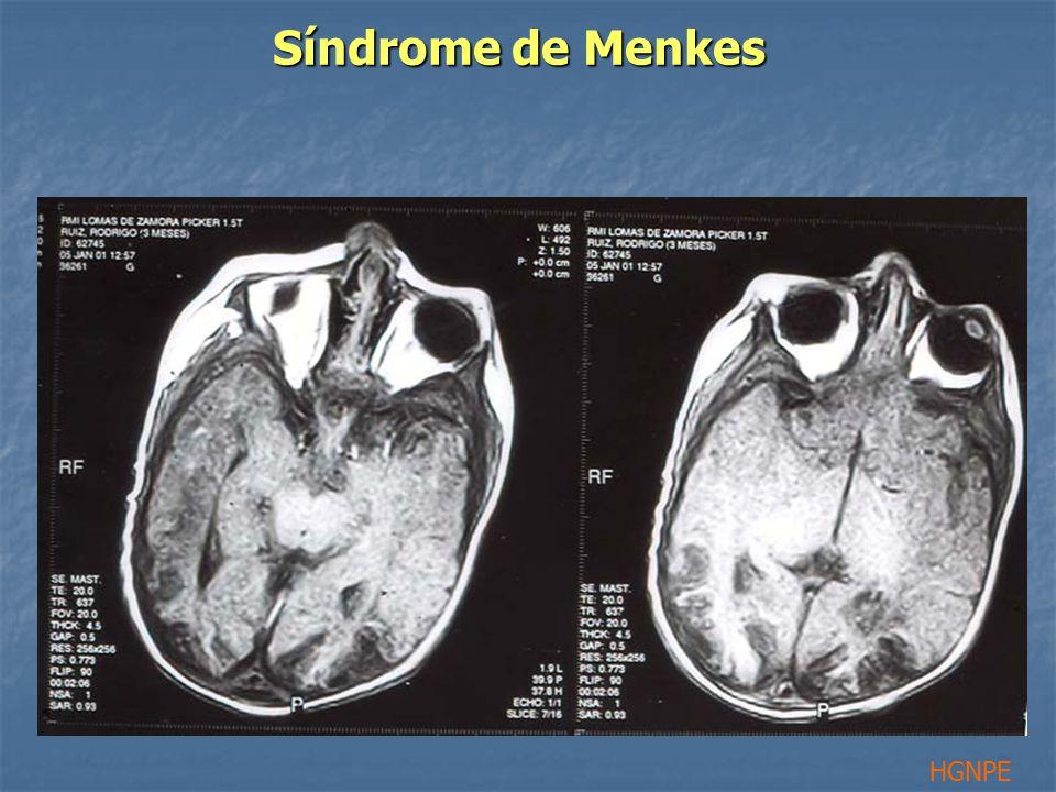 Síndrome de Menkes HGNPE