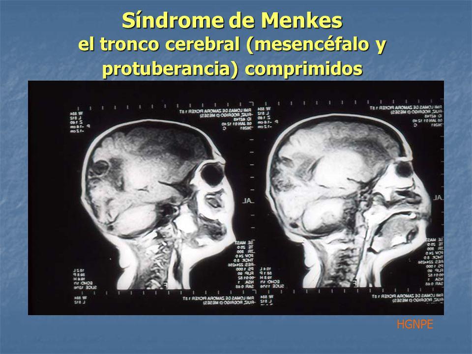 Síndrome de Menkes el tronco cerebral (mesencéfalo y protuberancia) comprimidos HGNPE