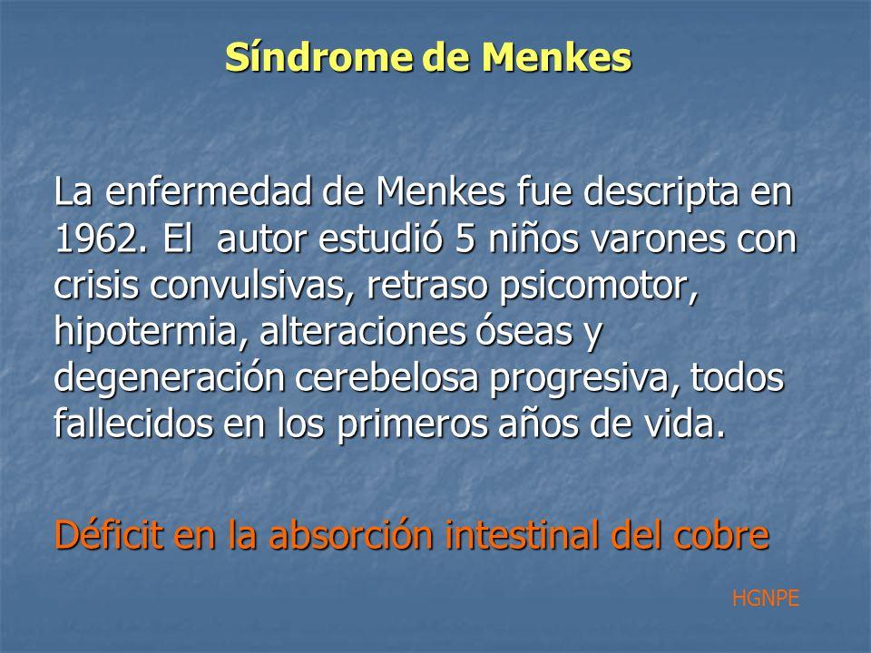 Síndrome de Menkes La enfermedad de Menkes fue descripta en 1962.
