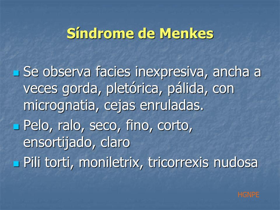 Síndrome de Menkes Se observa facies inexpresiva, ancha a veces gorda, pletórica, pálida, con micrognatia, cejas enruladas.