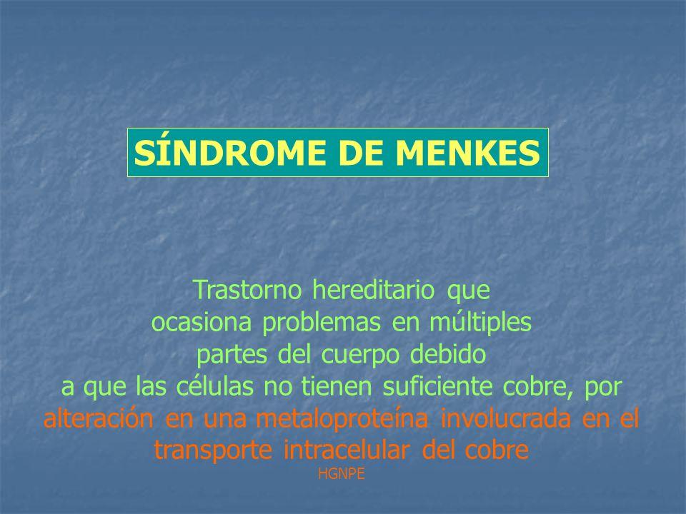 Trastorno hereditario que ocasiona problemas en múltiples partes del cuerpo debido a que las células no tienen suficiente cobre, por alteración en una metaloproteína involucrada en el transporte intracelular del cobre HGNPE SÍNDROME DE MENKES