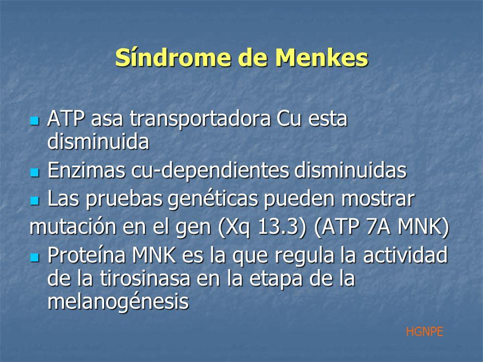 Síndrome de Menkes ATP asa transportadora Cu esta disminuida ATP asa transportadora Cu esta disminuida Enzimas cu-dependientes disminuidas Enzimas cu-dependientes disminuidas Las pruebas genéticas pueden mostrar Las pruebas genéticas pueden mostrar mutación en el gen (Xq 13.3) (ATP 7A MNK) Proteína MNK es la que regula la actividad de la tirosinasa en la etapa de la melanogénesis Proteína MNK es la que regula la actividad de la tirosinasa en la etapa de la melanogénesis HGNPE