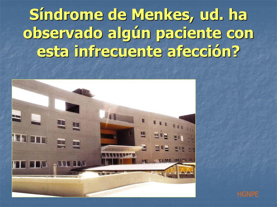 Síndrome de Menkes, ud. ha observado algún paciente con esta infrecuente afección