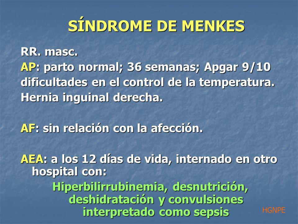 RR. masc. AP: parto normal; 36 semanas; Apgar 9/10 dificultades en el control de la temperatura.