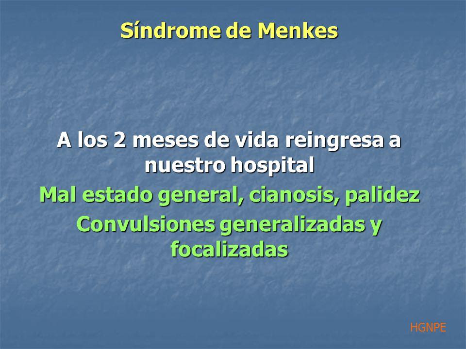 A los 2 meses de vida reingresa a nuestro hospital Mal estado general, cianosis, palidez Convulsiones generalizadas y focalizadas HGNPE