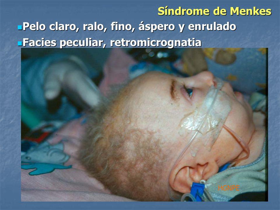Síndrome de Menkes HGNPE Pelo claro, ralo, fino, áspero y enrulado Pelo claro, ralo, fino, áspero y enrulado Facies peculiar, retromicrognatia Facies peculiar, retromicrognatia