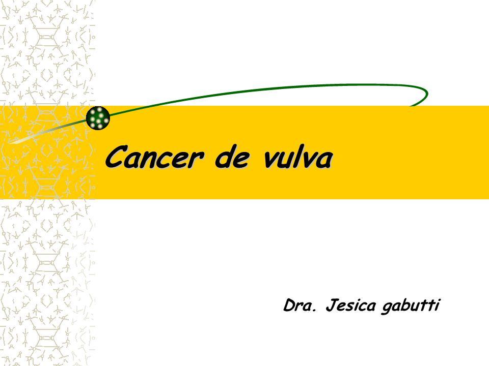 histopatología Carcinoma de células escamosas(90%) Melanoma Adenocarcinoma de la glándula de Bartolino Sarcoma linfomas Enfermedad de Paget Carcinoma de células basales(basaliomas) adenocarcinomas