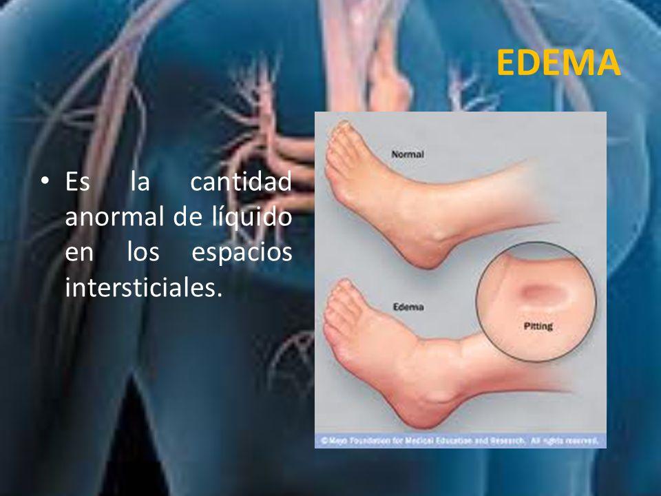 TIPOS DE EDEMA POR SU ORIGEN Edema Infamatorio: aumento de la permeabilidad vascular con aumento de la presión hidrostática intravascular y disminución de la presión coloidosmótica del plasma.