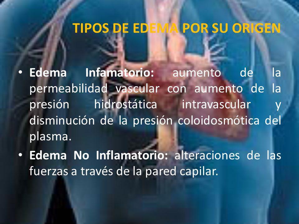 TIPOS DE EDEMA POR SU EXTENSIÓN Localizado: producido en una parte del cuerpo.