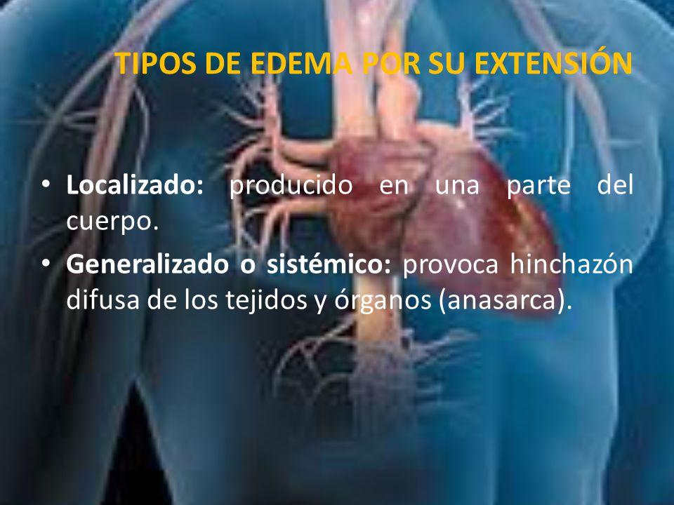 TIPOS DE EDEMA POR SU EXTENSIÓN Hidrotórax o derrame pleural: acúmulo de líquido en cavidad pleural o torácica.