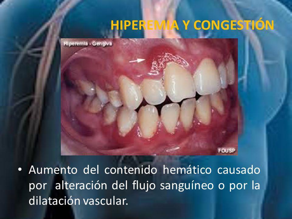 CLASIFICACIÓN Activa (aumento de flujo sanguíneo arterial o arteriolar).