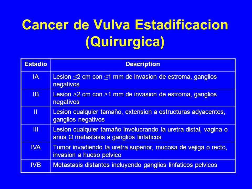 Cancer de Vulva Estadificacion (Quirurgica) EstadioDescription IALesion <2 cm con <1 mm de invasion de estroma, ganglios negativos IBLesion >2 cm con >1 mm de invasion de estroma, ganglios negativos IILesion cualquier tamaňo, extension a estructuras adyacentes, ganglios negativos IIILesion cualquier tamaňo involucrando la uretra distal, vagina o anus O metastasis a ganglios linfaticos IVATumor invadiendo la uretra superior, mucosa de vejiga o recto, invasion a hueso pelvico IVBMetastasis distantes incluyendo ganglios linfaticos pelvicos
