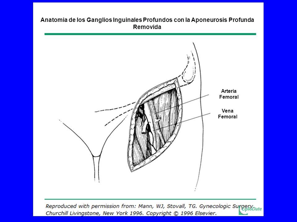 Anatomia de los Ganglios Inguinales Profundos con la Aponeurosis Profunda Removida Arteria Femoral Vena Femoral