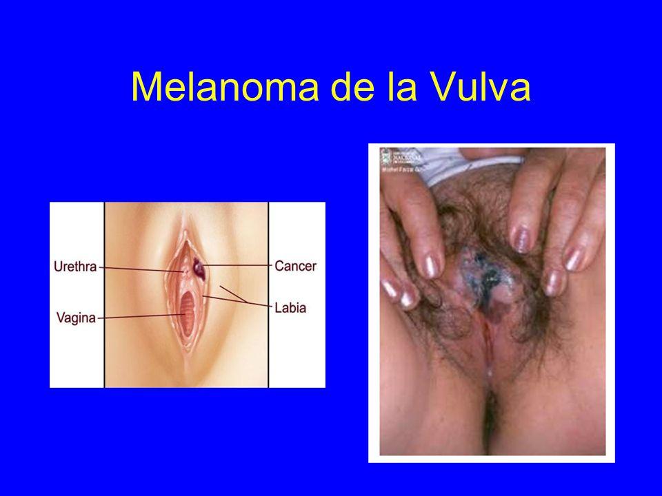 Melanoma de la Vulva