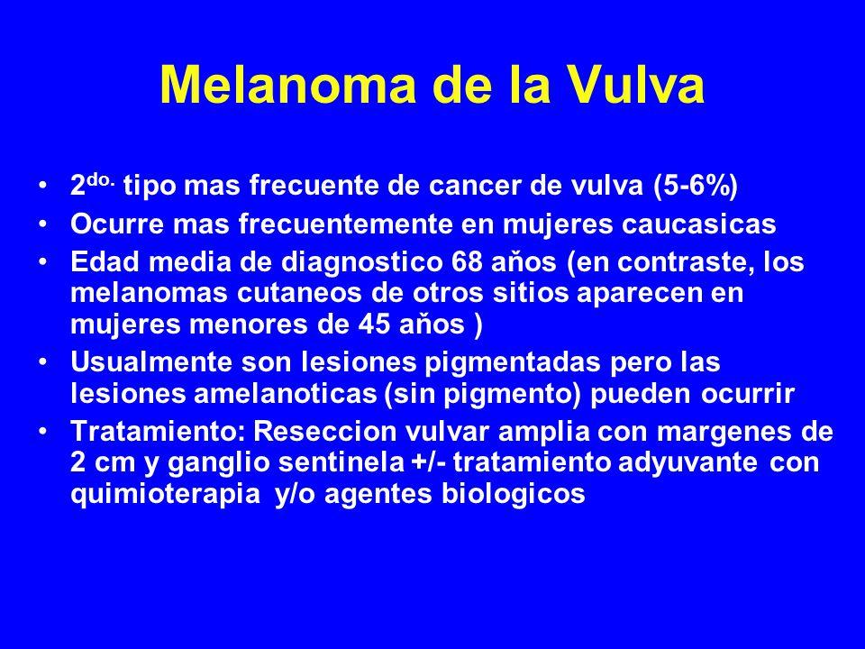 2 do. tipo mas frecuente de cancer de vulva (5-6%) Ocurre mas frecuentemente en mujeres caucasicas Edad media de diagnostico 68 aňos (en contraste, lo