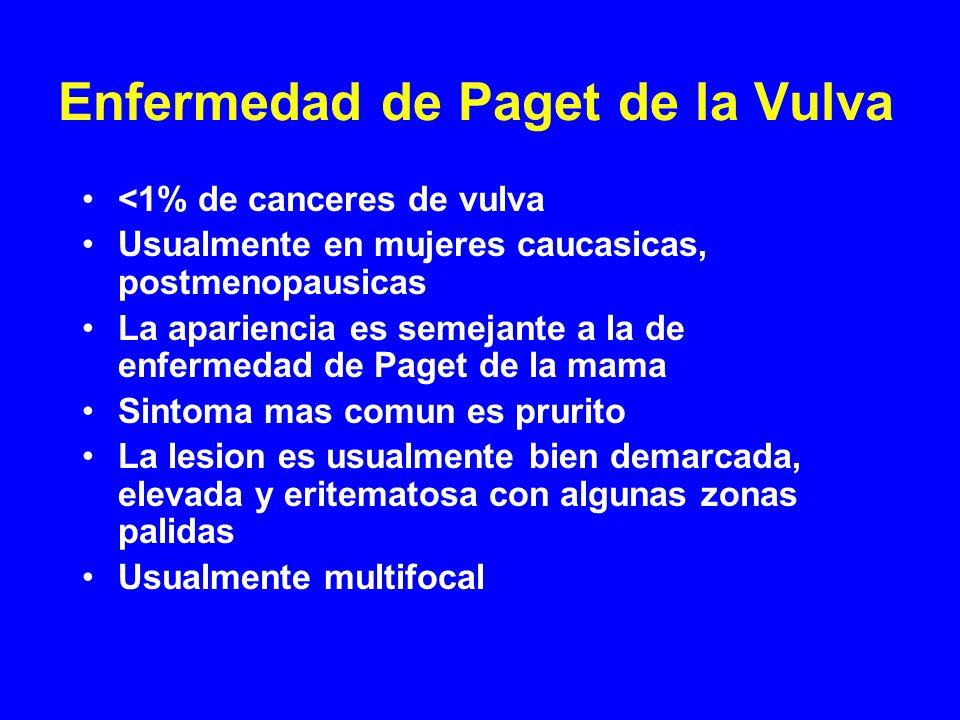Enfermedad de Paget de la Vulva <1% de canceres de vulva Usualmente en mujeres caucasicas, postmenopausicas La apariencia es semejante a la de enferme