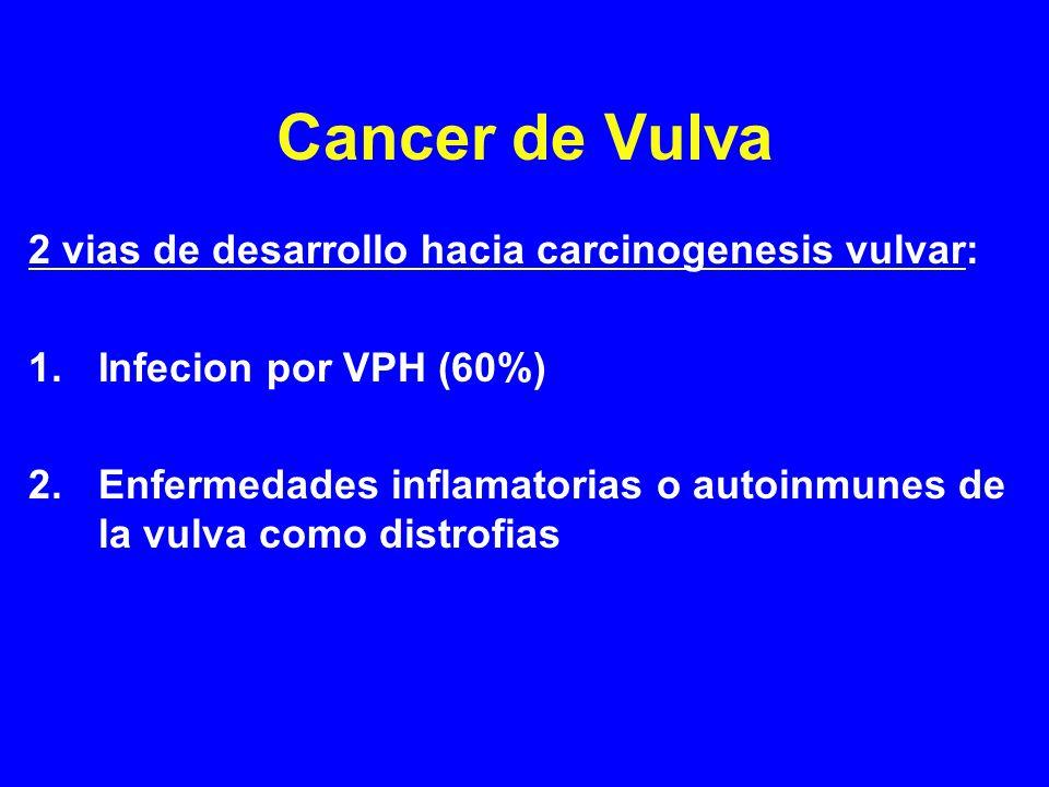 Tratamiento de Cancer de Vulva Radiacion: Indicada si los margenes de ERA son positivos y una re-excision quirurgica no es posible o deseada (por ejemplo, alrededor del clitoris o esfinter anal) En casos de ganglios con evidencia de metastasis (inguinales o pelvicos) Radiacion en combinacion con quimoterapia es una alternativa a cirugia en mujeres con estadios III/IVA