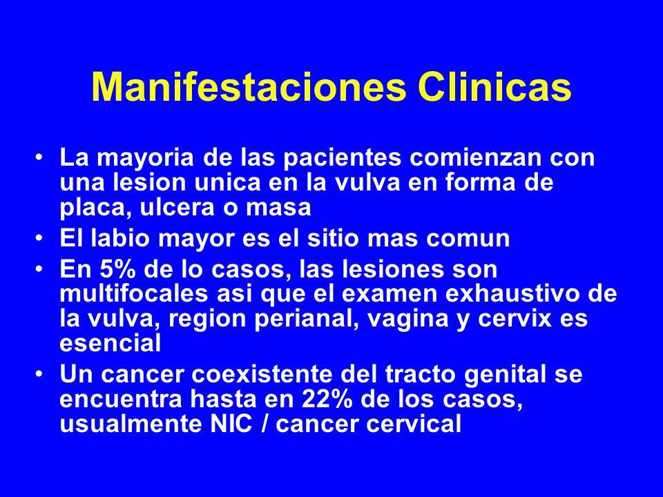 Manifestaciones Clinicas La mayoria de las pacientes comienzan con una lesion unica en la vulva en forma de placa, ulcera o masa El labio mayor es el sitio mas comun En 5% de lo casos, las lesiones son multifocales asi que el examen exhaustivo de la vulva, region perianal, vagina y cervix es esencial Un cancer coexistente del tracto genital se encuentra hasta en 22% de los casos, usualmente NIC / cancer cervical