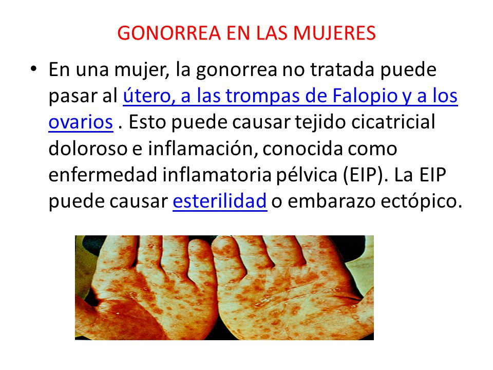 GONORREA EN LAS MUJERES En una mujer, la gonorrea no tratada puede pasar al útero, a las trompas de Falopio y a los ovarios.