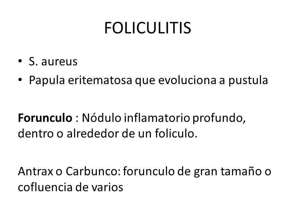 FOLICULITIS S. aureus Papula eritematosa que evoluciona a pustula Forunculo : Nódulo inflamatorio profundo, dentro o alrededor de un foliculo. Antrax