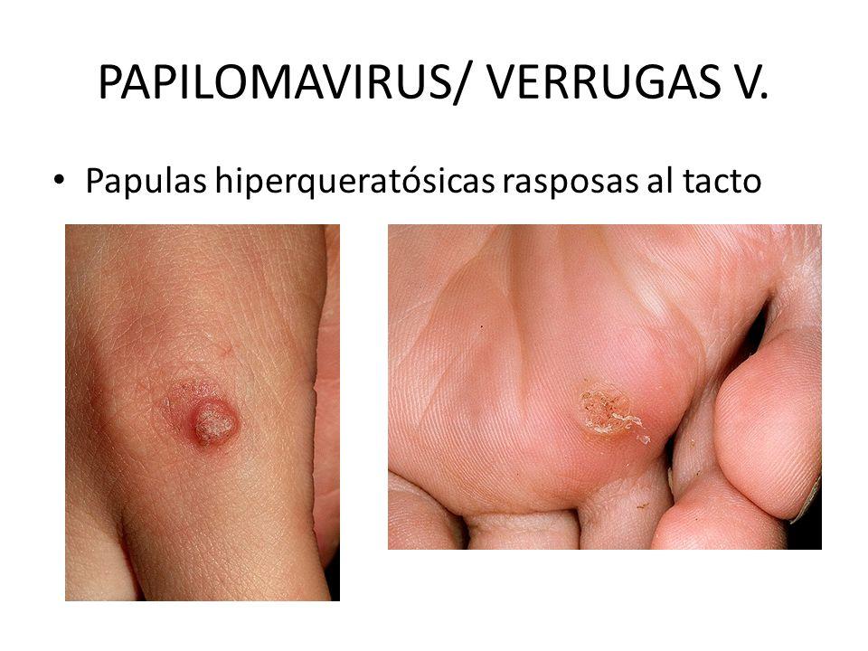 PAPILOMAVIRUS/ VERRUGAS V. Papulas hiperqueratósicas rasposas al tacto